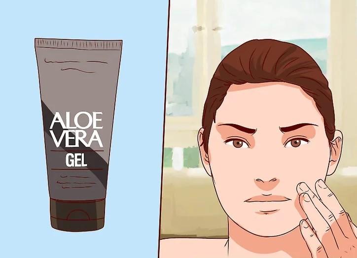 Pure Aloe Vera Gel For Acne