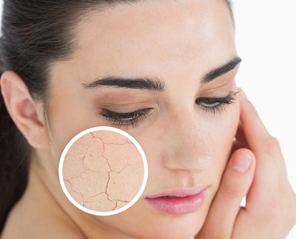 facial packs for dry skin